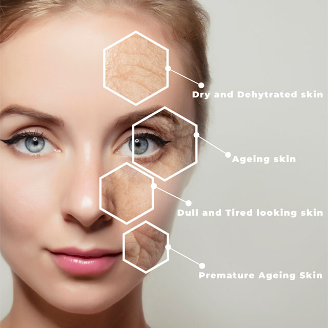 Fix Dry, Ageing and Distressed Skin